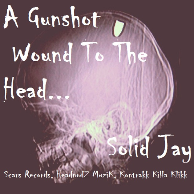 Gunshot wounds to the head