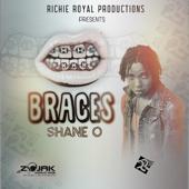 Braces - Shane O