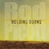 Welding Burns
