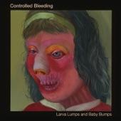 Controlled Bleeding - Eye of Needle