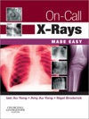 On-Call X-Rays Made Easy E-Book