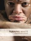Turning White