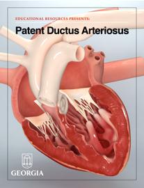 Patent Ductus Arteriosus book