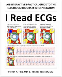 I Read ECGs