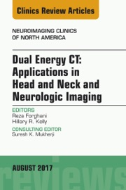 Dual Energy Ct Applications In Head And Neck And Neurologic Imaging An Issue Of Neuroimaging Clinics Of North America E Book