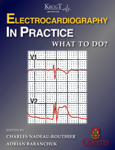 Electrocardiography in Practice: What to Do?