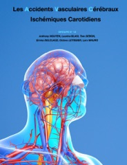 Les Accidents Vasculaires cérébraux Ischémiques Carotidiens