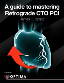 A guide to mastering Retrograde CTO PCI