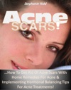 Acne Scars How To Get Rid Of Acne Scars With Home Remedies For Acne  Implementing Hormonal Balancing Tips For Acne Treatments