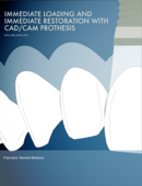 Immediate Loading and Immediate Restoration with CAD/CAM Prothesis