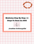 Medicine Step By Step: 11 Steps To Read An Ecg
