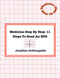Medicine Step By Step: 11 Steps To Read An Ecg book