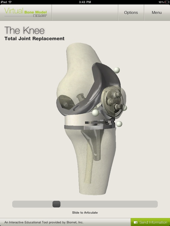 Biomet Virtual Bone Model screenshot-4