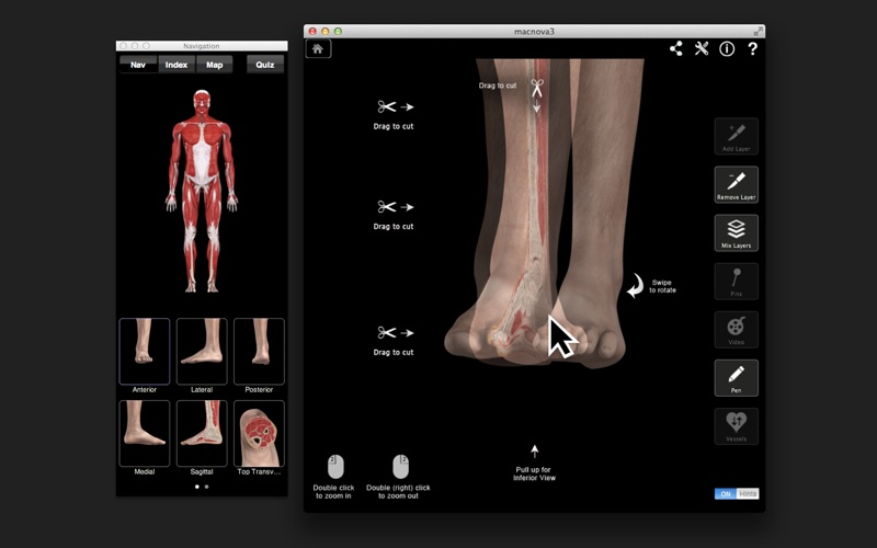 Ankle and Foot Pro III Screenshot