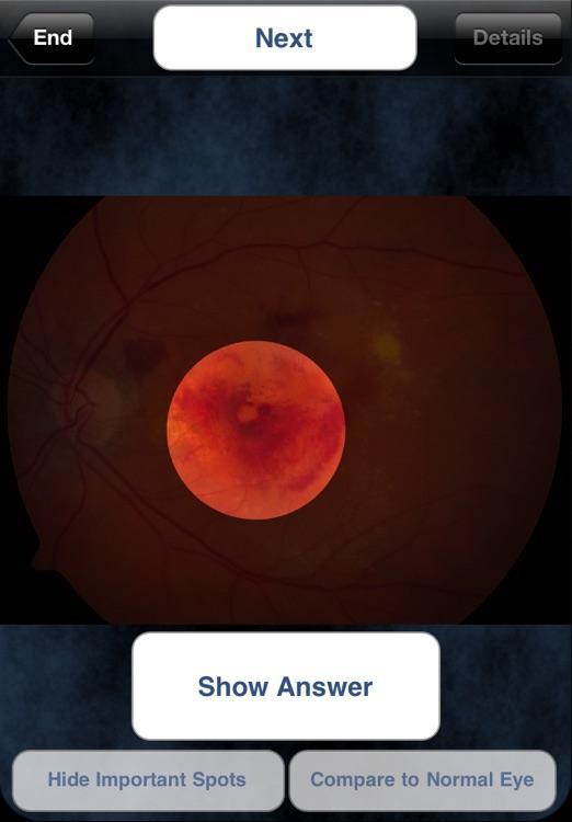 iEye Retina screenshot-4