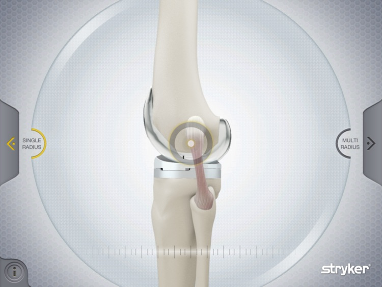 Stryker Get Around Knee screenshot-1