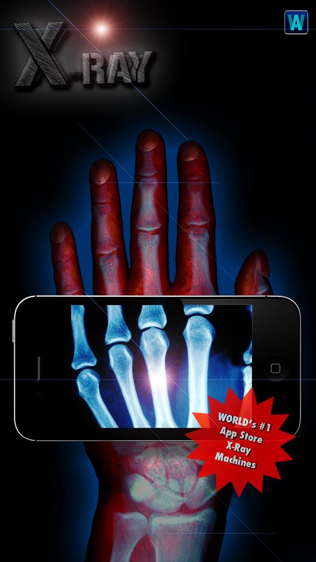 Amazing X-Ray FX ² PRO screenshot two