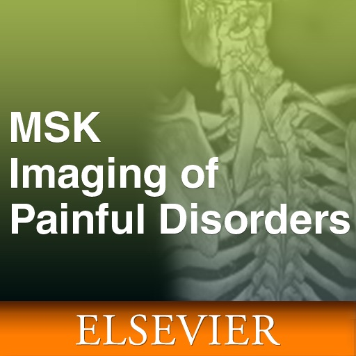 Musculoskeletal Imaging of Painful Disorders for iPhone and iPad icon