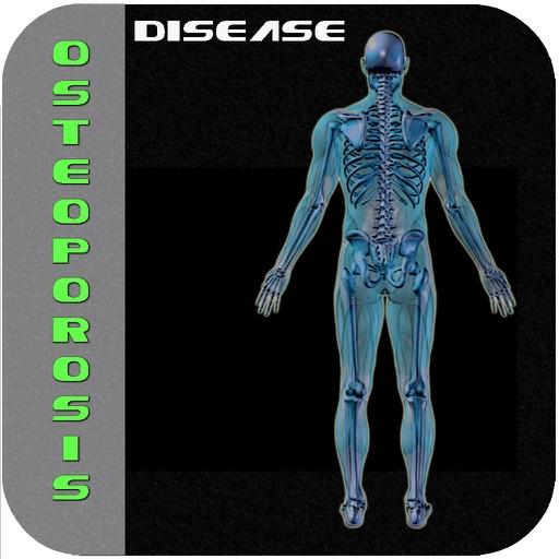 Osteoporosis Diseases II icon