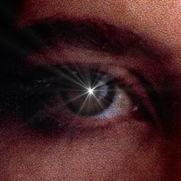 External Eye Exam