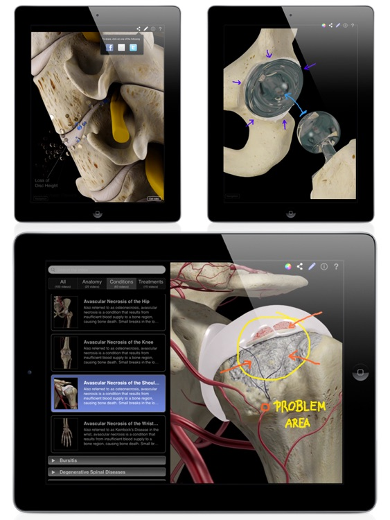 Orthopedic Patient Education screenshot-3