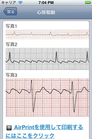 ECG screenshot1