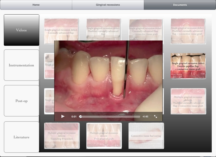 iMuco Gingival recessions screenshot-3