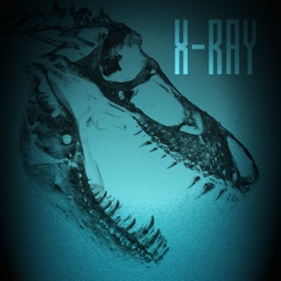X-Ray the World!