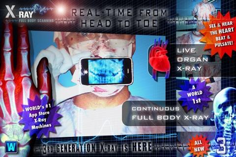Amazing X-Ray FX ³ : FULL BODY in HD