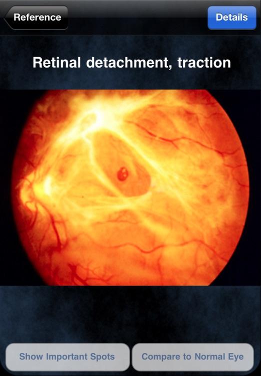 iEye Retina