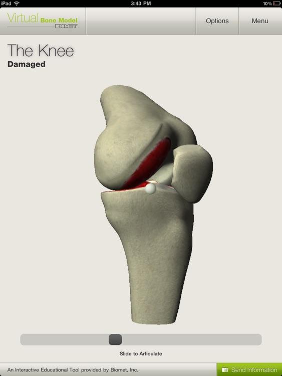 Biomet Virtual Bone Model