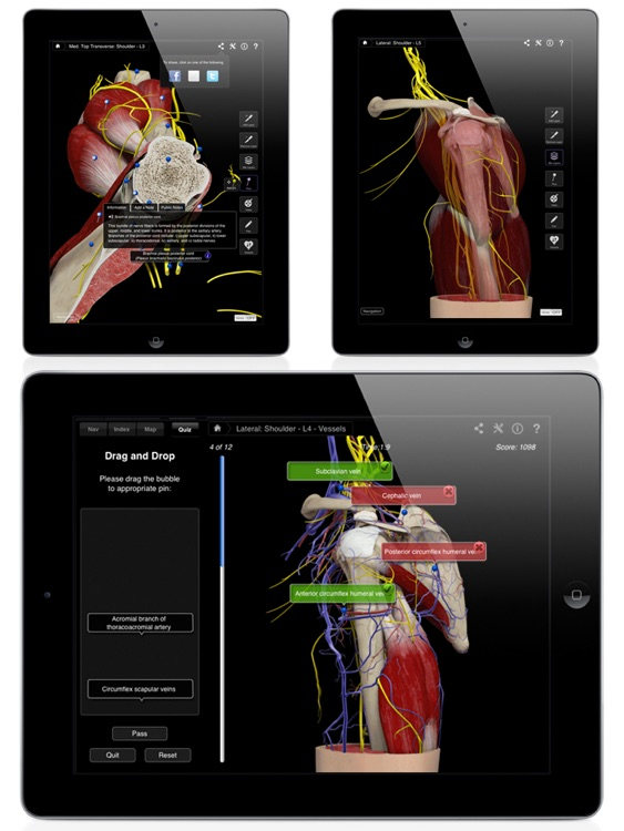 Shoulder Pro III for iPad screenshot-4