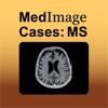 Multiple Sclerosis - MedImage Cases