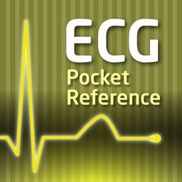 ECG Pocket Reference Free