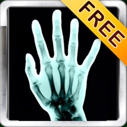 X-Ray Scan + Free