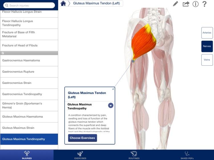 Rehabilitation for Lower Limbs