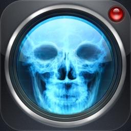 Skull X-Ray Cam