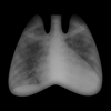 ACCP Radiology Cases