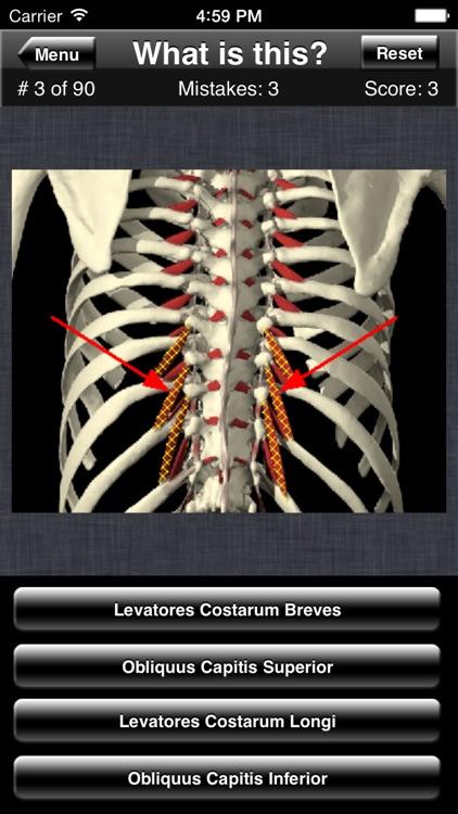 Anatomy Spine Quiz screenshot-3