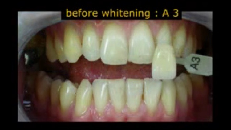 Teeth Whitening Techniques screenshot-4