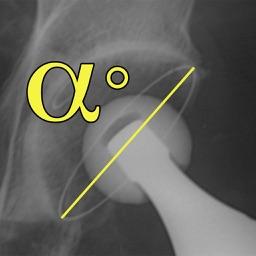 OrthoMeter2