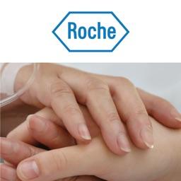 iRoche