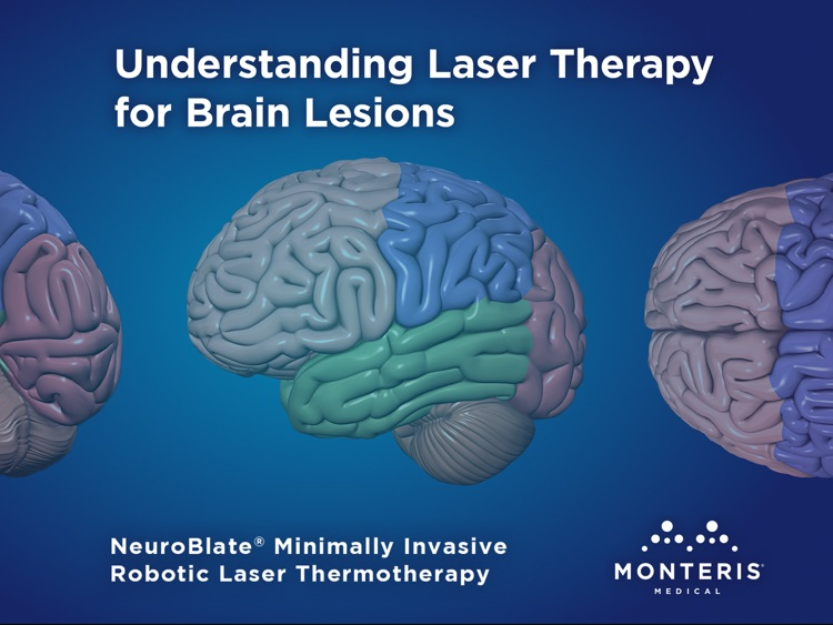 laser therapy for brain lesions ipad version by communicor inc