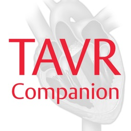 Edwards TAVR Companion
