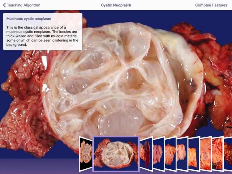 Johns Hopkins Atlas of Pancreatic Pathology
