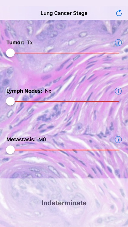 Lung Cancer Stage