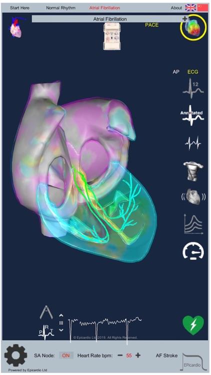 Intelligent Heart Sim AFib screenshot-8