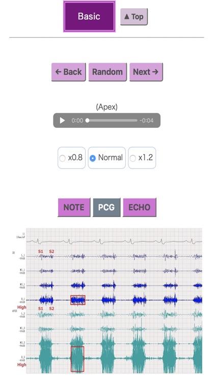 Pocket Heart Sound screenshot-4