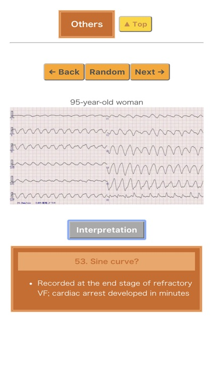 Pocket ECG screenshot-5