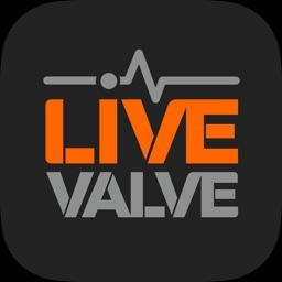 Live Valve eMTB